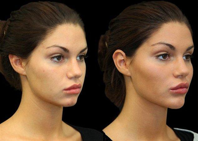 Geçici hyaluronik asit dolgularla yüzü yeniden şekillendirmek son yıllarda çok popüler.