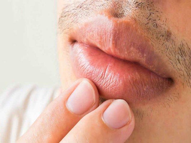 3. Mor-mavi dudaklar