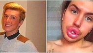 """Парень помешан на пластических операциях: родители боятся, что губы их сына однажды не выдержат и лопнут (или """"отвалятся"""")"""