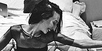 Девушка, страдающая анорексией, делится настоящими фото, показывающими, как сильно выпадают волосы