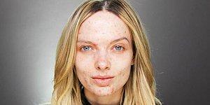 Свободу акне, или новая мода в Инстаграме: Покажи дефекты кожи, не стесняясь