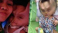 Toddler Battling A Rare Brain Condition Left With 'Devil Horns' After Surgery Operation