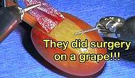 The Story Behind 'They Did Surgery On A Grape' Memes That Brought The House Down!
