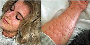 21-летняя девушка, страдающая аллергией на холод, может умереть в зимний период, если не найдет способ согреться