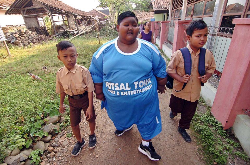 Мальчик Похудел Фото. Как самый толстый мальчик в мире похудел на 54 килограмма