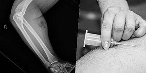 Man Rushed To Hospital After Injecting His Own Semen To Cure Back Pain!