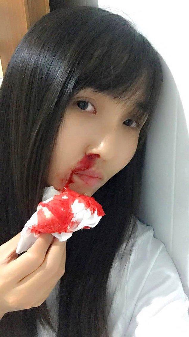 Bangkok'da yaşayan birçok insanın son zamanlarda burunları kanamaya ve öksürdüklerinde ağızlarından kan gelmeye başladı.