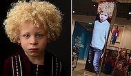 Этот очаровательный мальчик-альбинос стал моделью после того, как его мама выложила фото в соцсети
