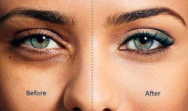 8. Göz altındaki siyah halkalardan kurtulmak için masaj yapın.