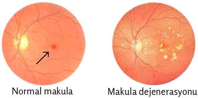 Sarı nokta olarak da bilinen makula, görme işleminde büyük rol oynar, zarar görmesi durumunda da görme problemlerine yol açan makula dejenerasyonu meydana gelir.