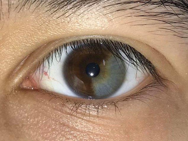 """9. """"Sol gözüm tam 1/3 oranında gri."""""""