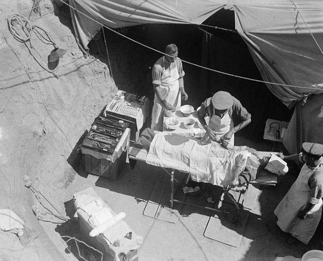 21. Yaralı bir anzak askeri açık havada ameliyat edilirken, Çanakkale 1915.
