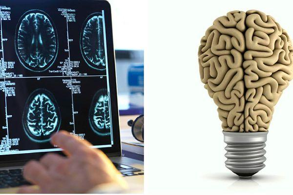 Если пройдёте тест на знание мозга человека на 14/14, то можете считать себя настоящим профессором
