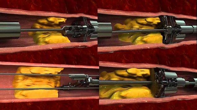 8. Yüksek kolesterolün sebep olduğu plaklar, bu ufacık makine sayesinde arterlerden silinip atılıyor.