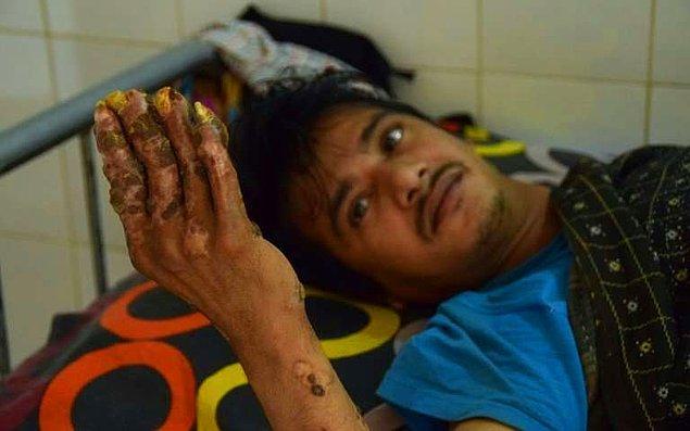 Doktorlar, Abul Bajandar'ı tedavi ettiklerini düşünmüşlerdi. Ancak, geçtiğimiz yılın Mayıs ayında hastalık yeniden nüksetti.