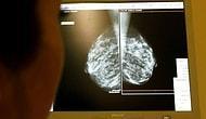 Искусственный интеллект Google выявил рак быстрее врача