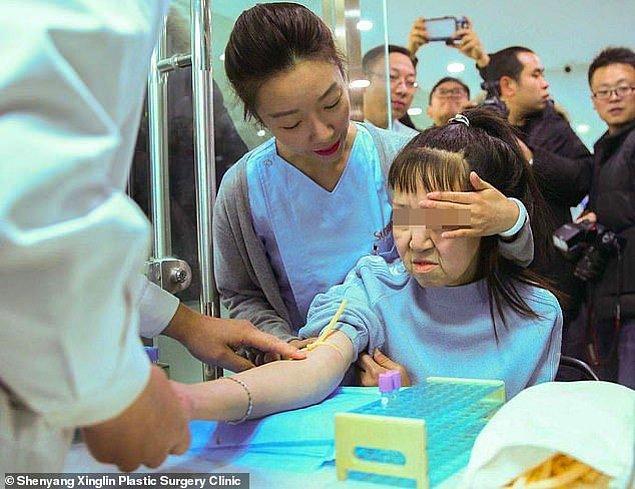 Feng, bu hastalık nedeniyle, 15 yaşında olmasına rağmen oldukça yaşlı gözüküyordu.