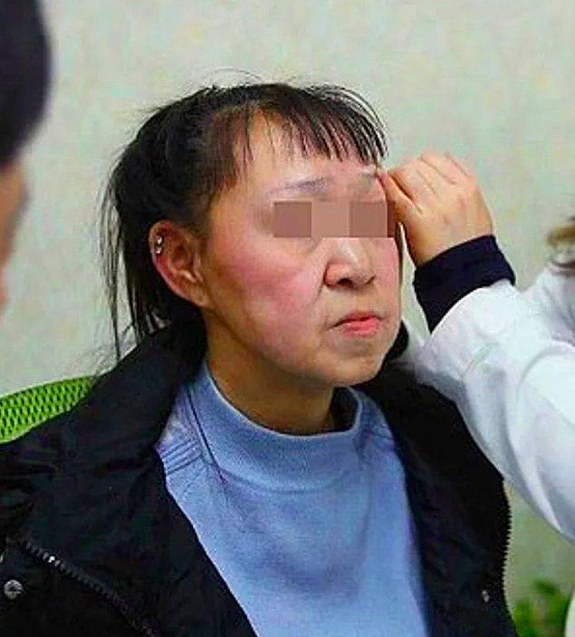 Xiao Feng, ameliyatından bir ay sonra yeni görünümü ile insanların karşısına çıktı. O güne kadar aynaya bakması yasak olan Feng, kendisini gördüğü an ağlamaya başladı.