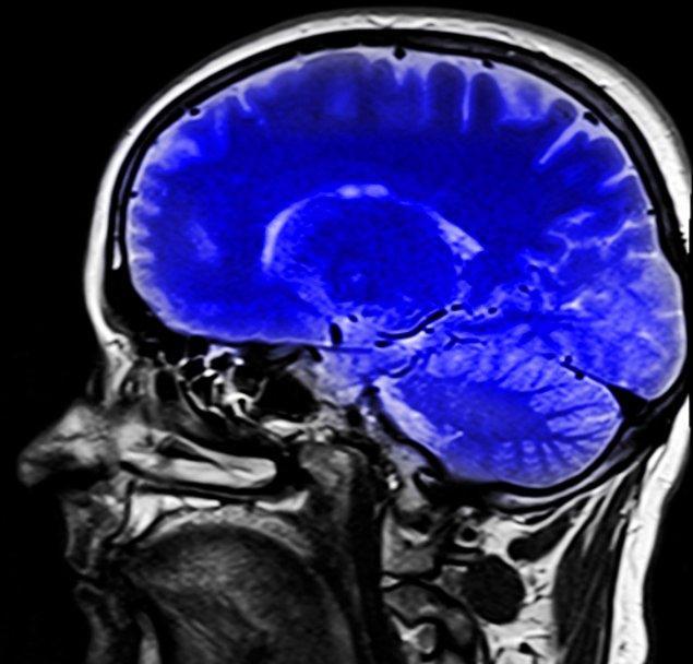 4. 'Beynimizin, baskın olan bir tarafı vardır.'