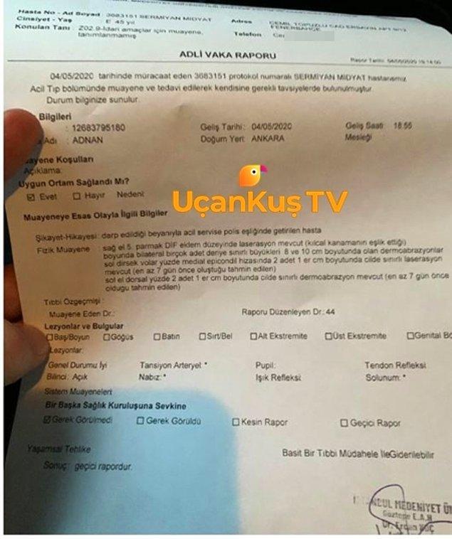 İşte tüm bu gelişmelerin ardından UçanKuş'un haberine göre Sermiyan Midyat cephesinden, Sevcan Yaşar'a yönelik suçlamalar geldi. UçanKuş'un ulaştığı belgede, Sermiyan Midyat'ın darp raporu aldığı görülüyor.