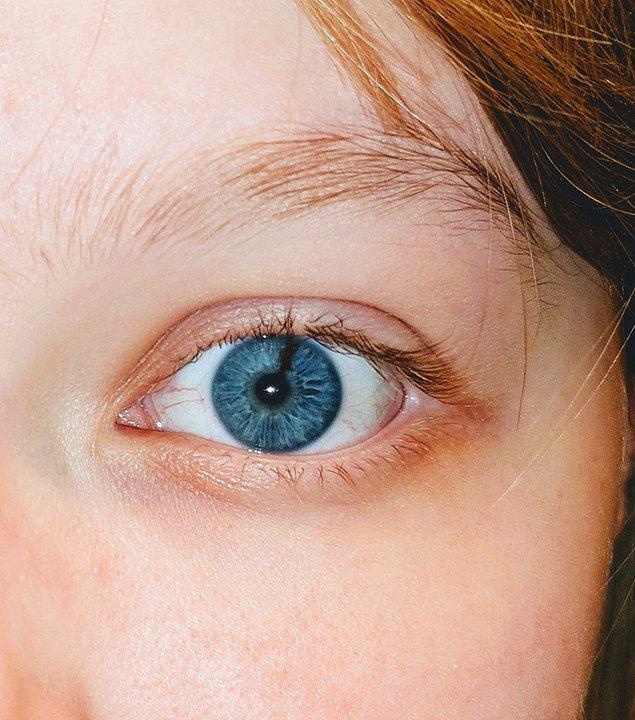 """4. """"Sol gözümün irisinde bir çizik var."""""""