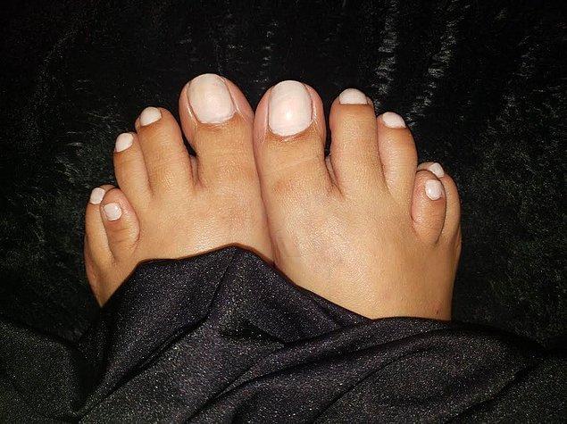 """12. """"Brakimetatarsi isimli bir rahatsızlığım var ve bu nedenle ayak parmaklarım bu şekilde görünüyor."""""""