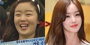 """Корейские поп-кумиры """"до и после"""" пластических операций"""