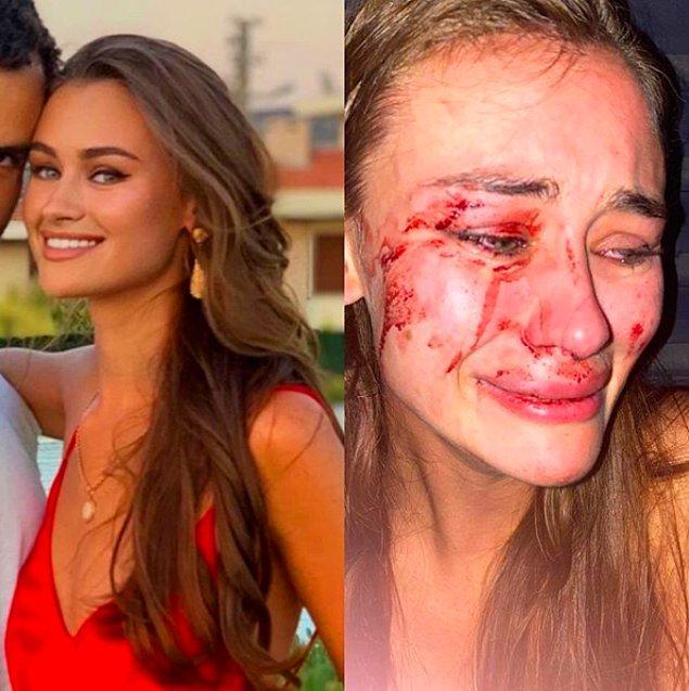 """1. Ukraynalı model Daria Kyryliuk, tatil için geldiği İzmir Çeşme'deki """"The Beach of Momo"""" isimli işletmenin güvenliği tarafından darp edildiğini iddia etti."""