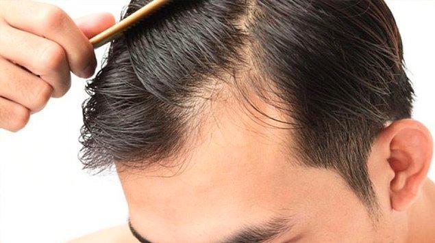 Saç ekimi kaç paraya yapılıyor?