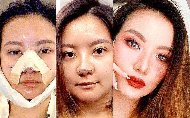 Ancak insanların estetik operasyonlara yönelmesinin en büyük sebebi iyileşme süresi.