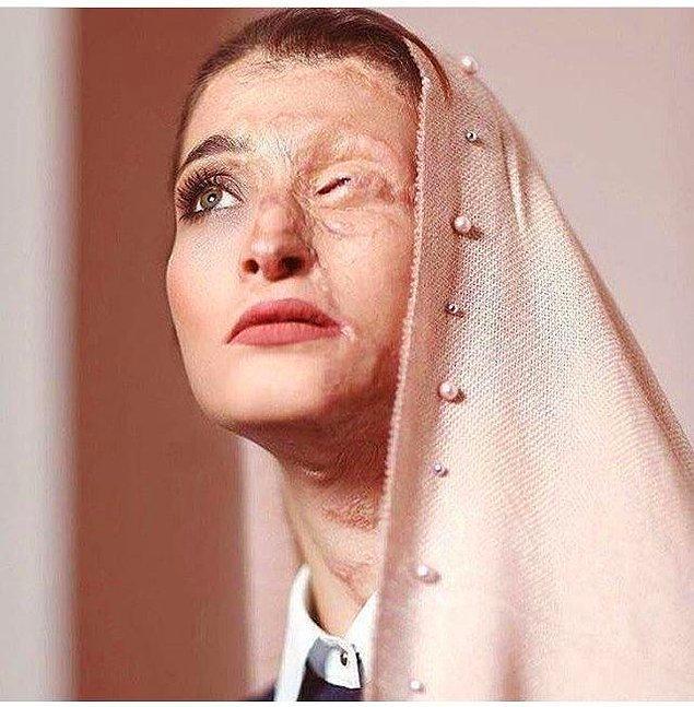 Saldırganlar Marziyeh'nin düzgünce örtünmediğine karar veriyor ve bu güzel kadın daha hayatının baharındayken asit saldırıyla karşı karşıya kalıyor.