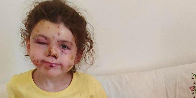 5 yaşındaki Neriman Bulut, yüzüyle birlikte vücudunun çeşitli yerlerinden saçmayla yaralandı.