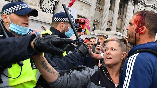 Müdahale sırasında hem protestocu hem de polislerden yaralananlar oldu.