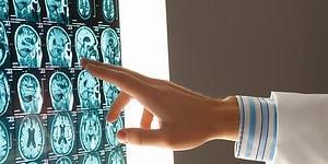 Голландские ученые обнаружили новый орган в черепе человека