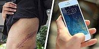 17-летний подросток, который продал свою почку ради iPhone, теперь прикован к постели на всю жизнь