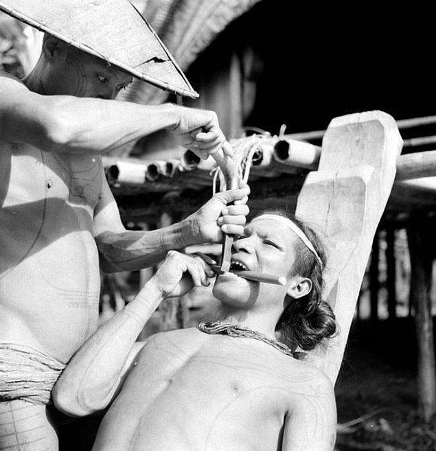 14. Dünyadaki en ilginç ve farklı geleneklerden biri Endonezya'daki diş bileme veya yontma işlemi olabilir.