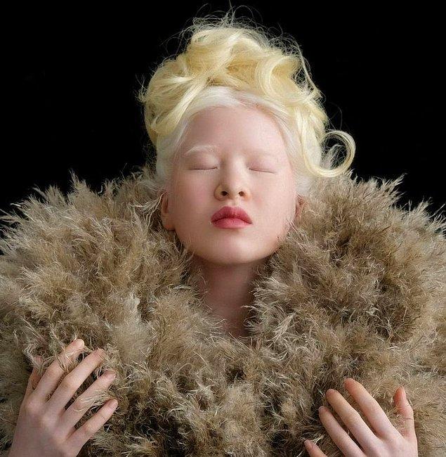 """""""Albinizm konusunda farkındalık yaratma fırsatı"""""""