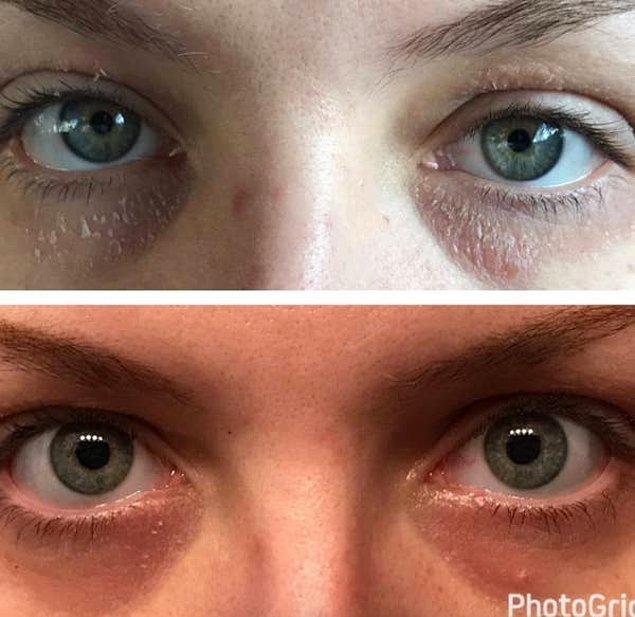 3. Sıkılaştırıcı, onarıcı ve besleyici saf salyangoz mukus özlü, hassas göz kapağı ve göz çevresi kremi