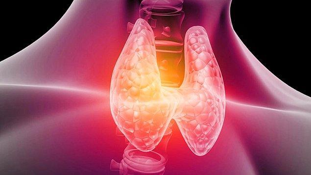 Hipotiroidi Tedavisi