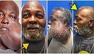 Yüzünde Dünyanın En Büyük Tümörlerinden Biri Olan Adamın Ameliyatını Ücretsiz Yapan Doktor