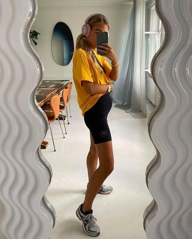 Kadınlar ve düz karınlılar şişkinlik problemini daha belirgin yaşıyor. Stilist Emili Sindlev, sürekli hamile sanılmasına yol açan problemini sosyal medyada takipçileriyle paylaştı ve bu konuda yalnız olmadığını gördü.