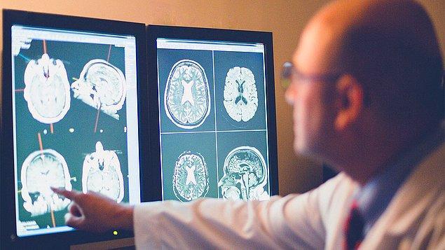 Alzheimer'da erken teşhis ne kadar önemli?