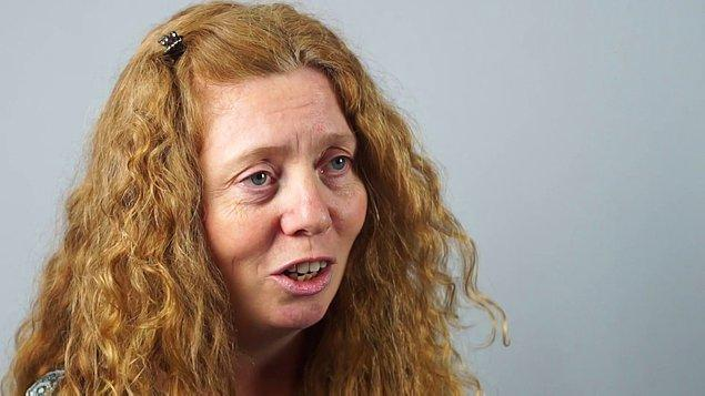 Karen Byrne, 27 yaşında epilepsisini kontrol altına almak için girdiği bir ameliyattan çıktıktan sonra sol elinin istemsiz olarak hareket etmeye başladığını söyledi.