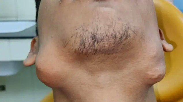 Nitesh Kumar, son beş yıldır kompleks odontoma adı verilen bir çene tümöründen muzdaripti.