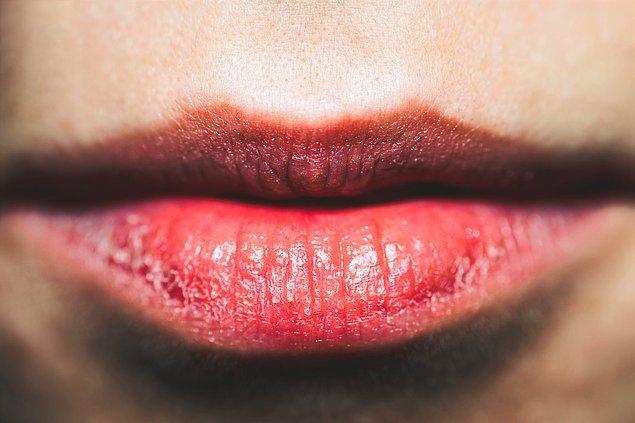 12. Kupkuru, çatlak dudaklarınız varsa onlara da gerekli bakımı yaparak, daha genç ve sağlıklı bir görünüme kavuşturabilirsiniz.