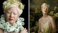 Брошенная в младенчестве из-за альбинизма девочка выросла, чтобы стать моделью Vogue (20 фото)