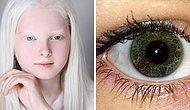 20 фотографий уникальных людей c редкими генетическими особенностями