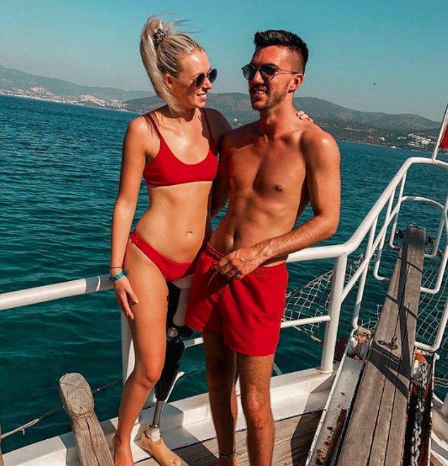 Kaza sonrası yaşadıkları zorlu zamanları beraber atlatan genç çift, şu sıralar paylaşımlarıyla sosyal medyada birçok insana ilham veriyorlar.
