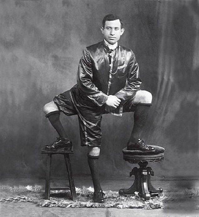 9. 3 bacağı, 16 ayak parmağı ve 2 cinsel organı olan Frank Lentini: