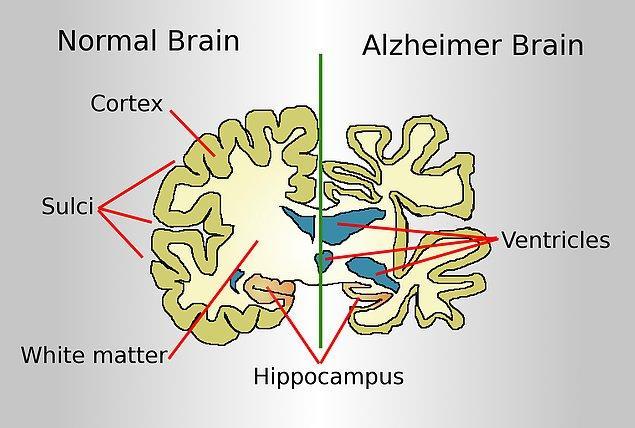 Alzheimer, beyin hücrelerinin küçülerek aktivitesini kaybetmesi ve zamanından önce ölmesinden kaynaklanan bir hastalık.